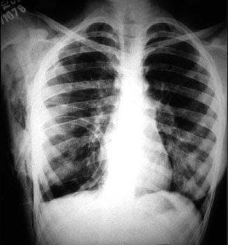 El rayo X, en inventos y descubrimientos de lectura para niños de  educapeques.