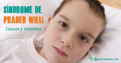 Síndrome de Prader Willi : Una enfermedad rara compleja